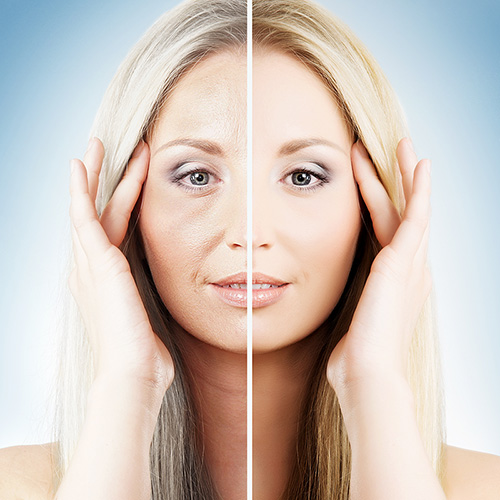 Injectables, Botox, Fillers, PRP