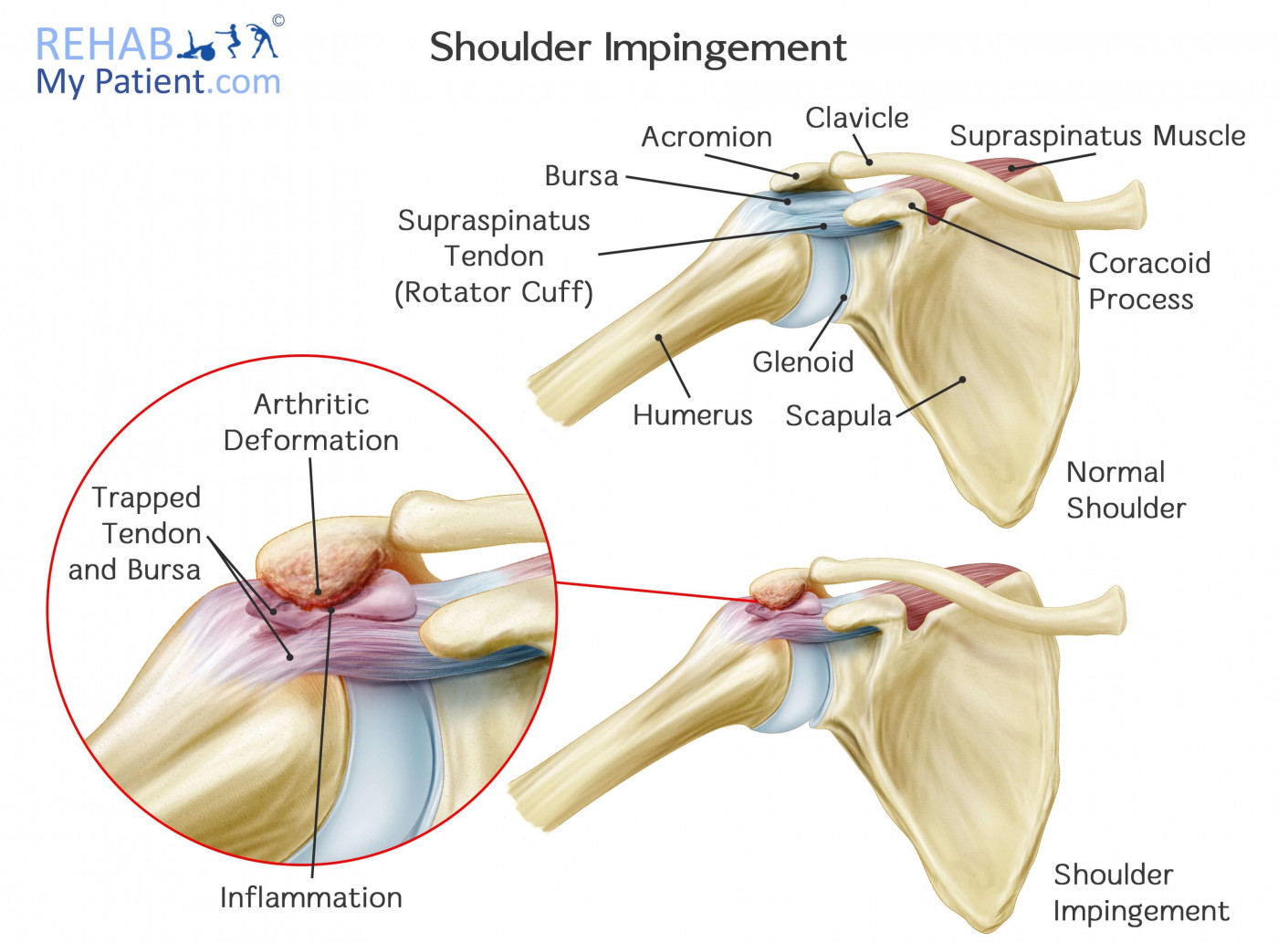 Primary Shoulder Impingement: As you can see in the image, the subacromial space ( space below the acromion has decreased causing an impingement.