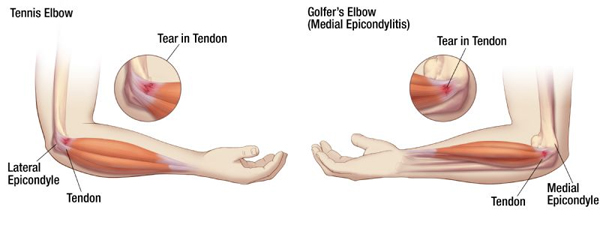 Golfers-vs-Tennis-Elbow.jpg