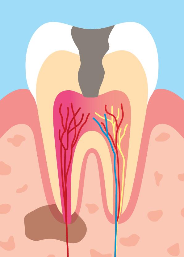 Karies, skadad pulpa & infektion