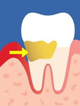 ilningar i tänderna efter borttagning av tandsten