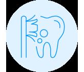 Förebygga Hål i Tänderna