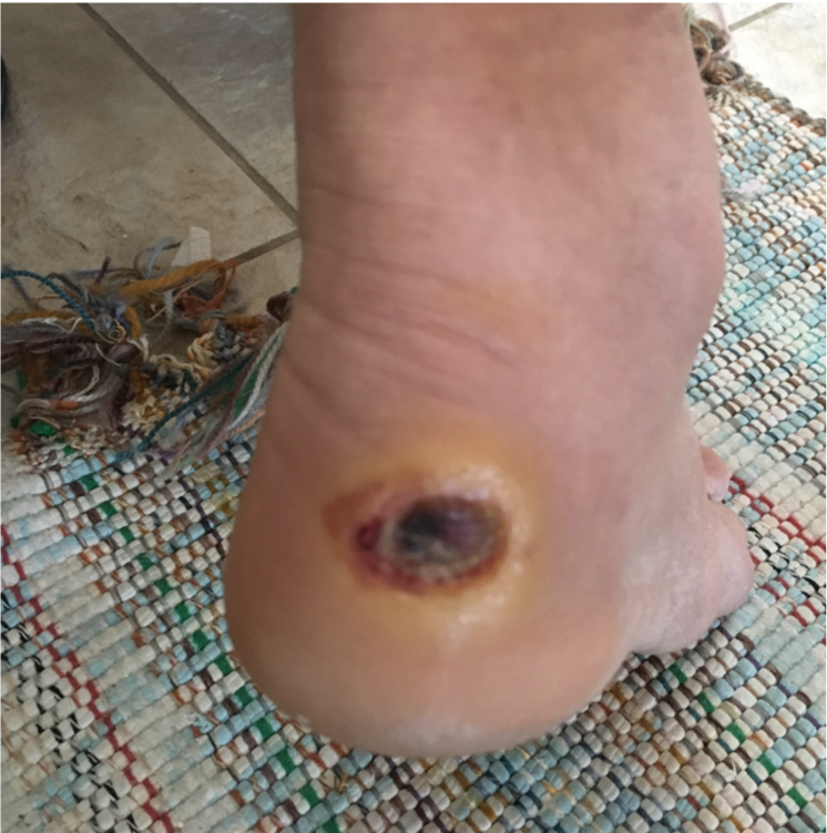 My dad's diabetic foot ulcer, the day it was first noticed.