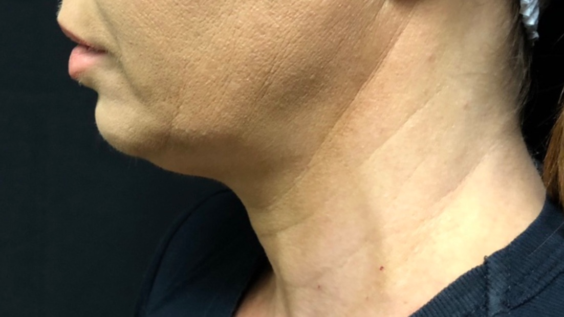 BEFORE: NECK