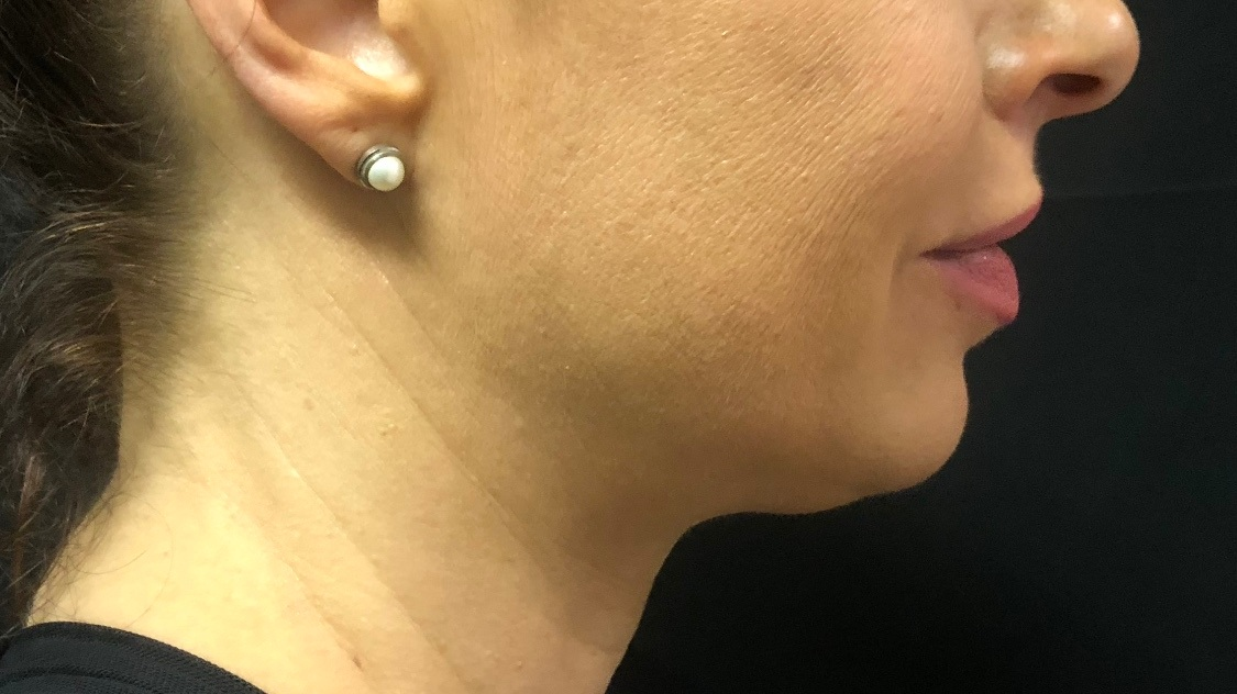 AFTER: CHIN *only 6 weeks after one treatment