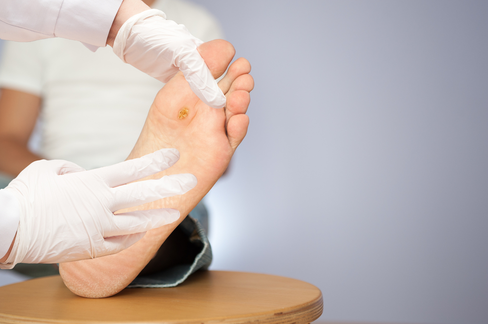 foot wart plantar warts doctor essexville linwood michigan podiatrist
