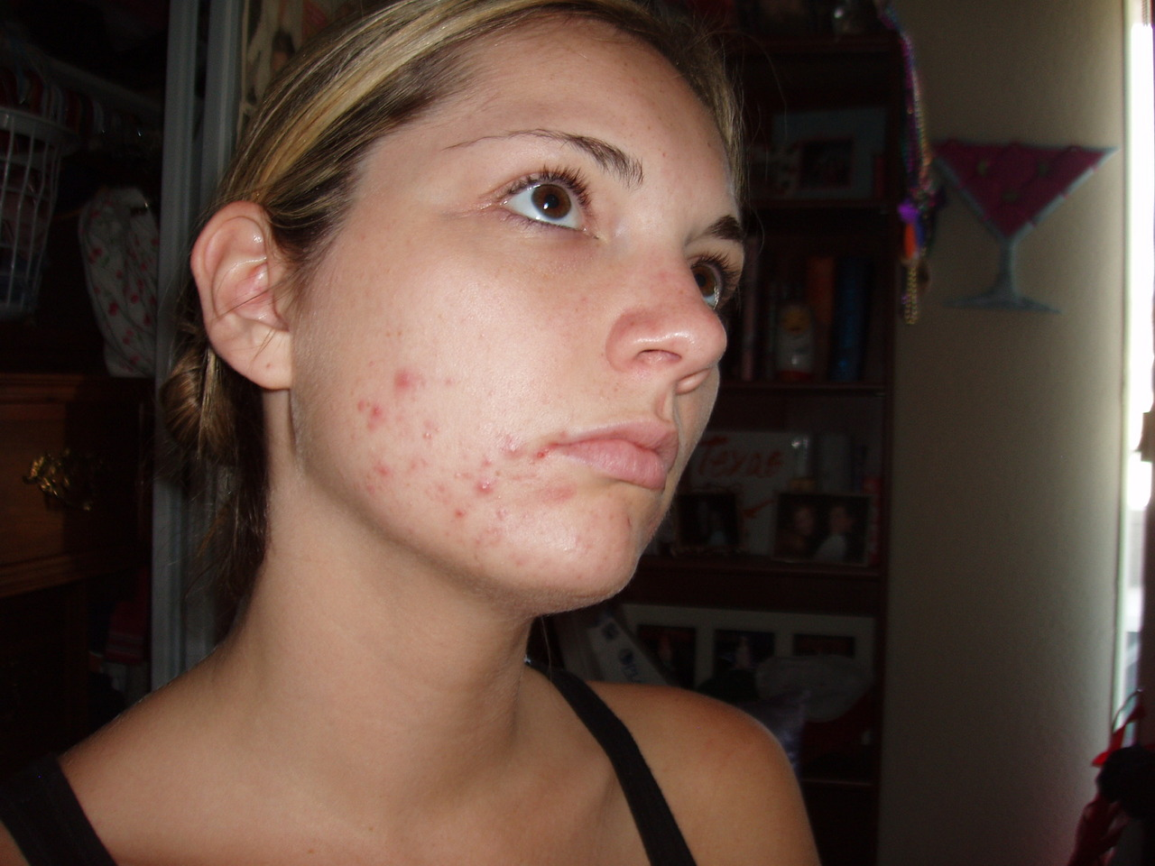 23 year-old me with insane acne.