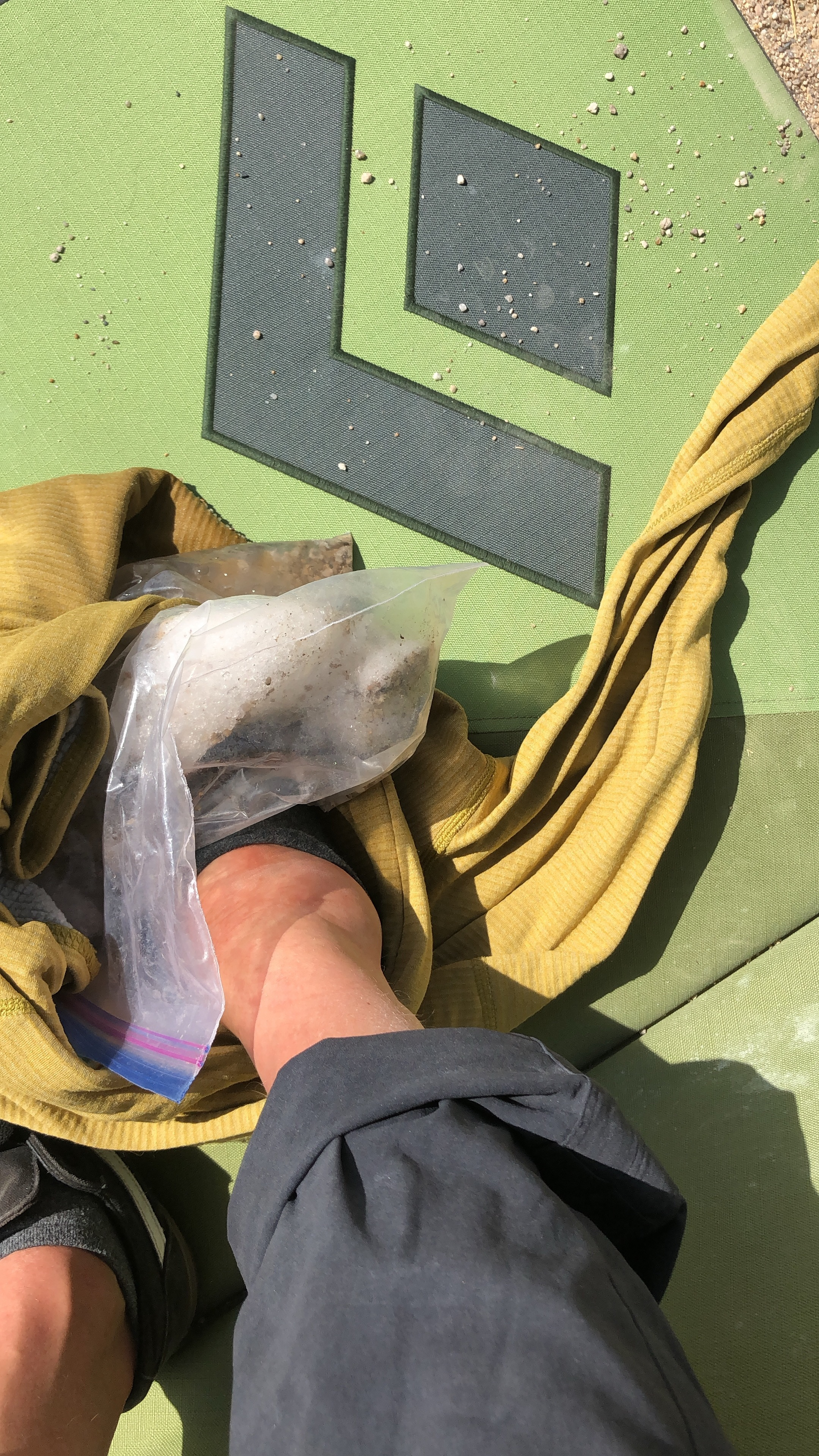 Teaching a clinic with a bag of ice 😃! It wasn't just a sprain but also two fractures on my leg (heel bone and calf bone).