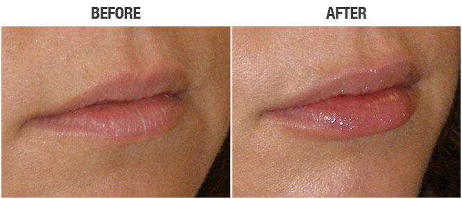 BEFORE RESTYLANE, Naples FL   AFTER 1 syringe of RESTYLANE Naples, Fl   Similar results with Juvederm Fillers