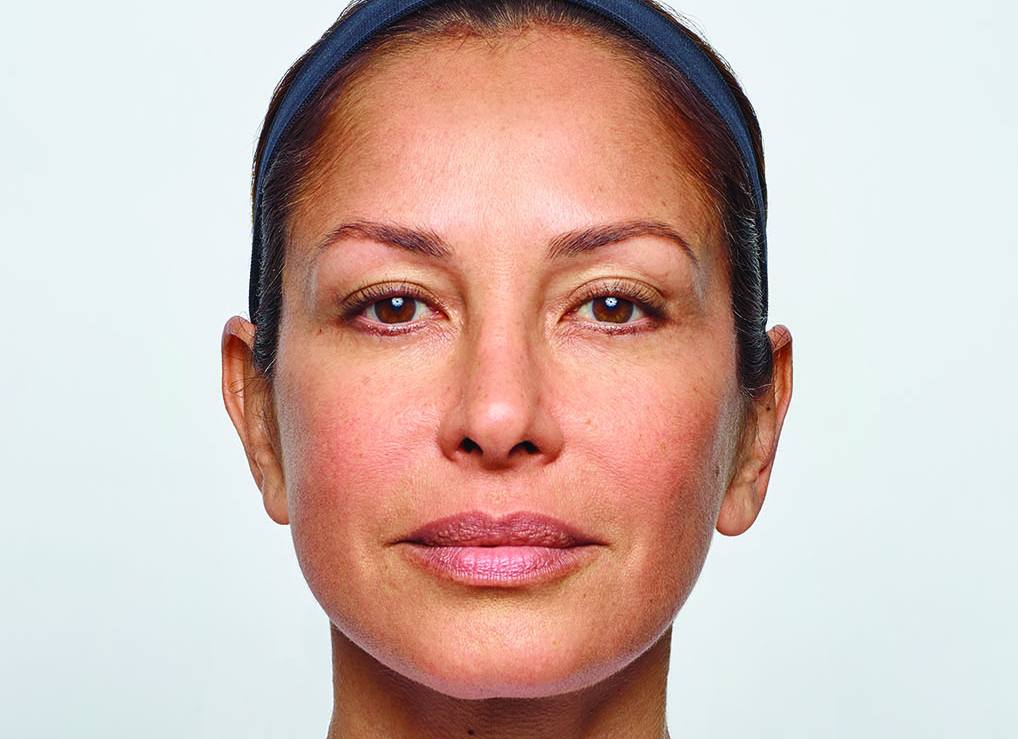 AFTER 50 UNITS of DYSPORT in (FROWN LINES ONLY) Naples FL  Similar results with Botox