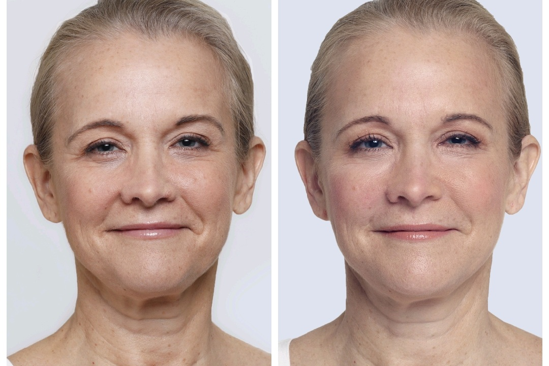 Before Restylane Lyft Naples, Fl After Restylane Naples, FL  (Similar results with Juvederm Fillers)