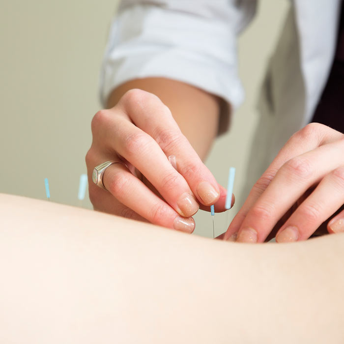 Acupuncture - The aim of the acupuncturist is to create balance and harmony in the body in order to optimise health and wellbeing. We know that acupuncture releases endorphins which are nature's pain relieving messengers.
