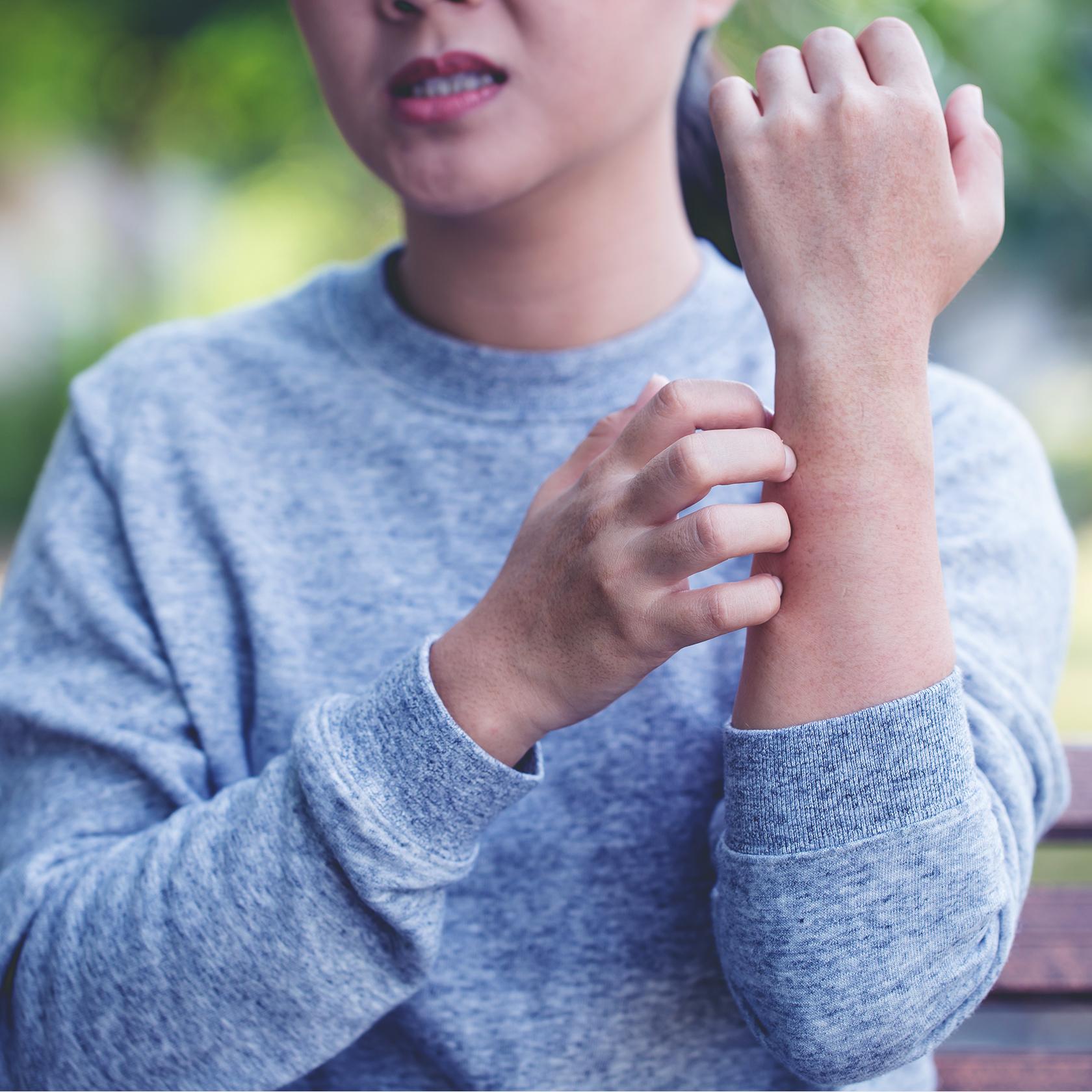 ty-wellness-eczema.jpg