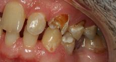 before_teeth_close.jpg