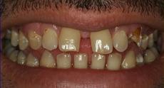 before_teeth-2.jpg
