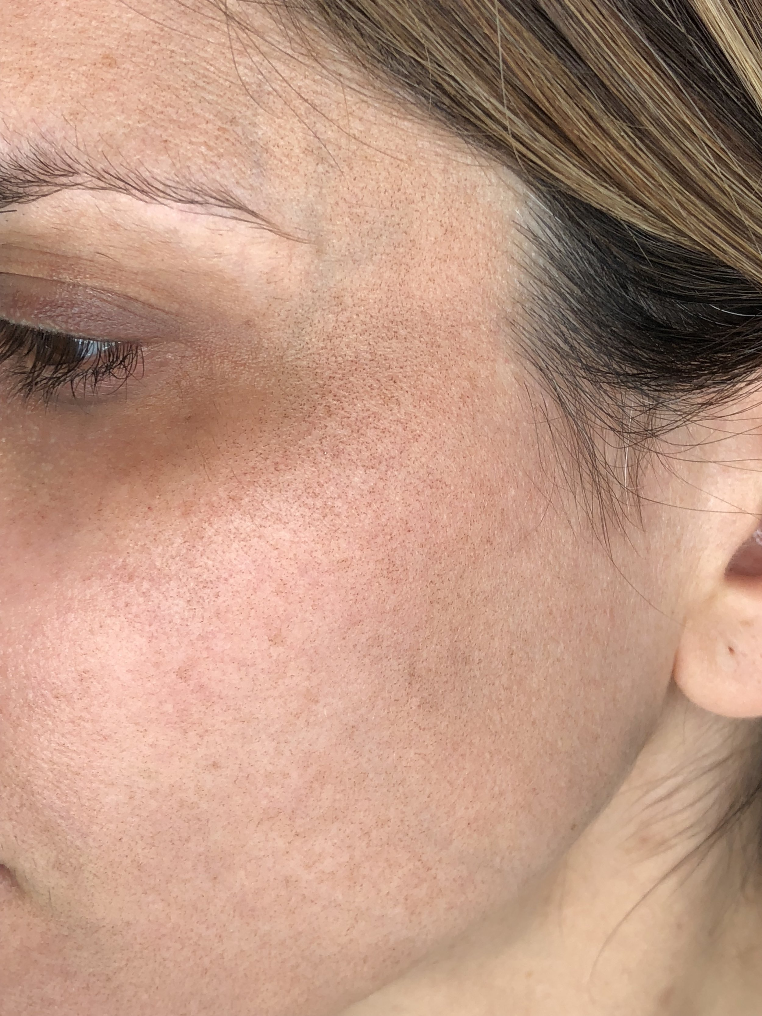 Up close you can see these tiny dark dots. But from a distance, my face just looked tan.
