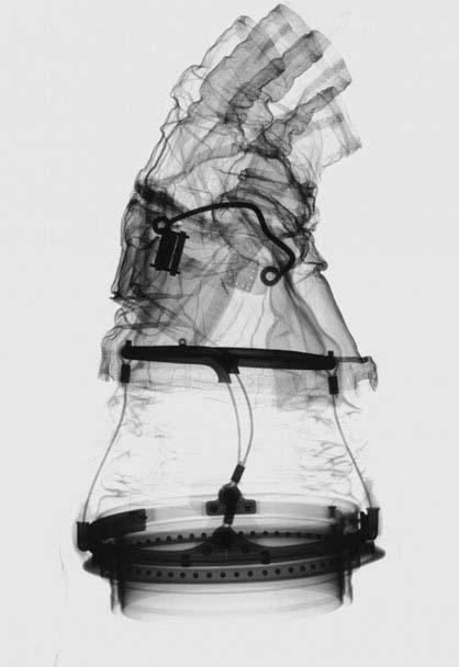 Glove X Ray.jpg