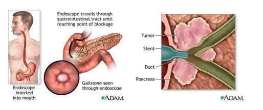 GI endoscopy and ERCP access to the pancreatic orifice