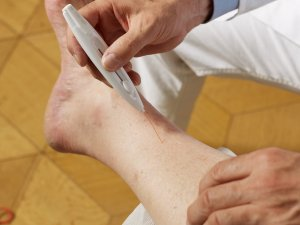 Diabetic Foot Exam for Neuropathy Moon