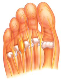 Image of Mortons Neuroma