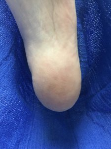 Laser treatment of plantar's wart after treatment Moon Twp