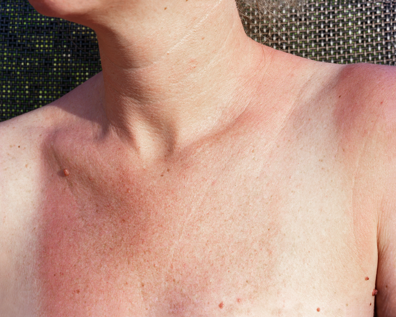 Sunburn , 2013 © Lily Brooks