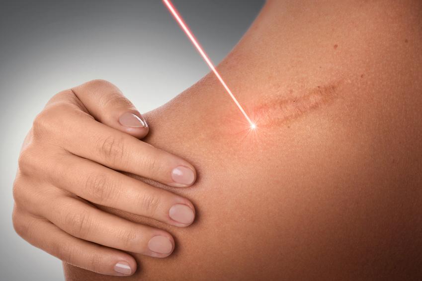 Jubewell-Jutta-Bertsch-Massage-Angebot-Narbenentstörung