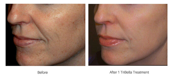 Before-&-After-TriBella.jpg