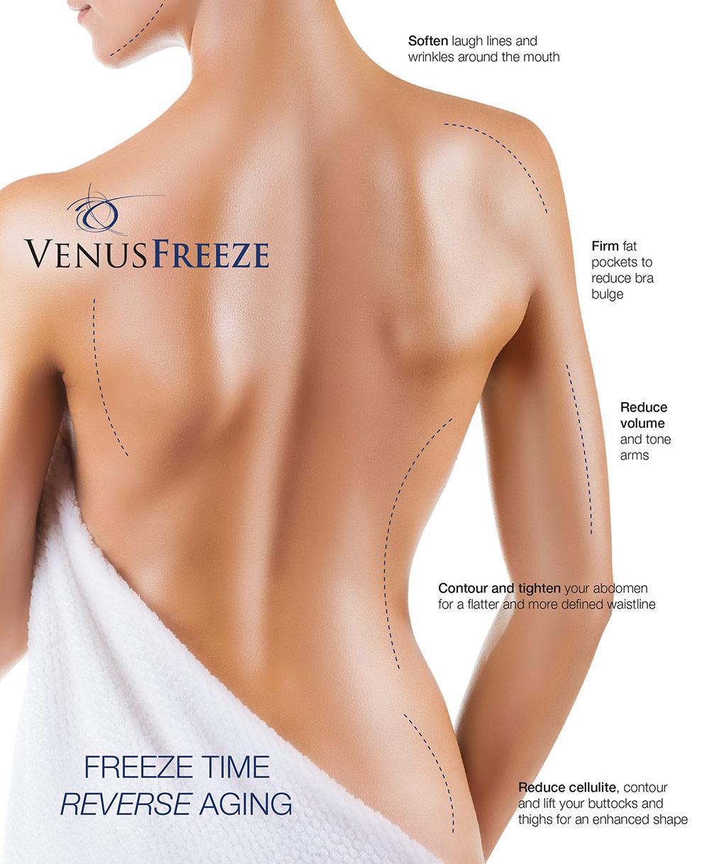 Venus-Freeze-Patient.jpg