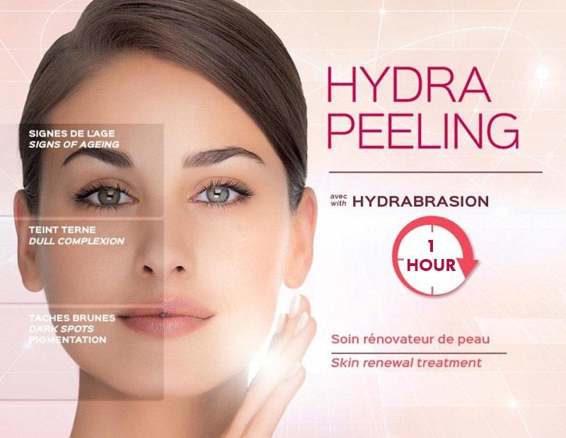 Hydra-Peel.jpg