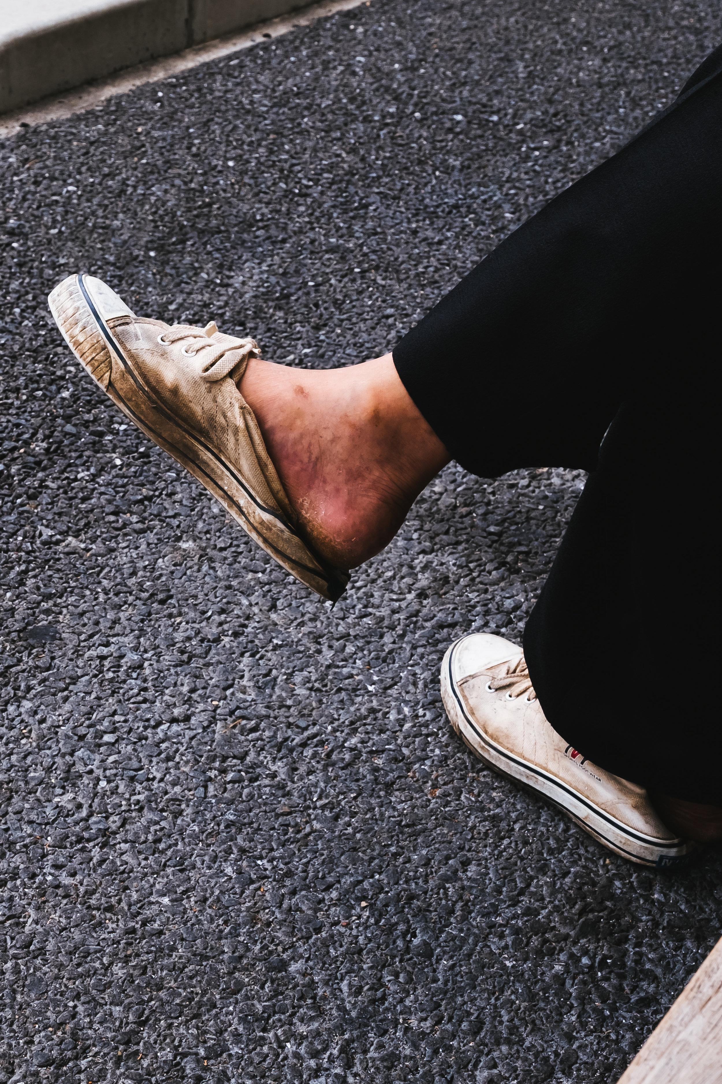 Arishiyama-worn-shoe.jpg