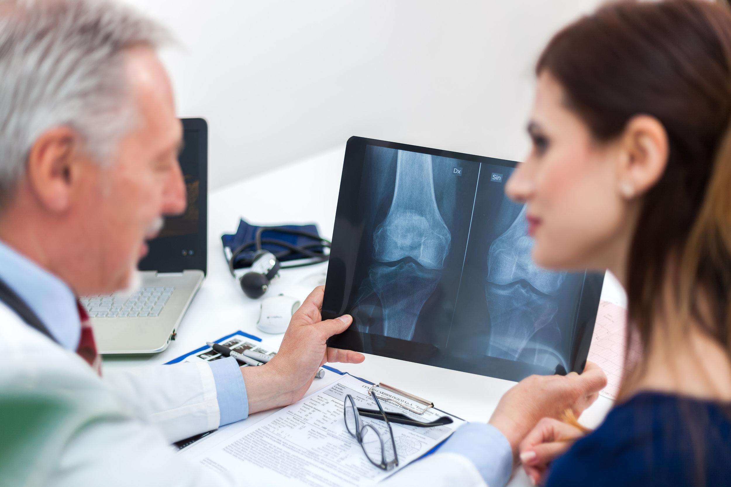 Osteoporosis -