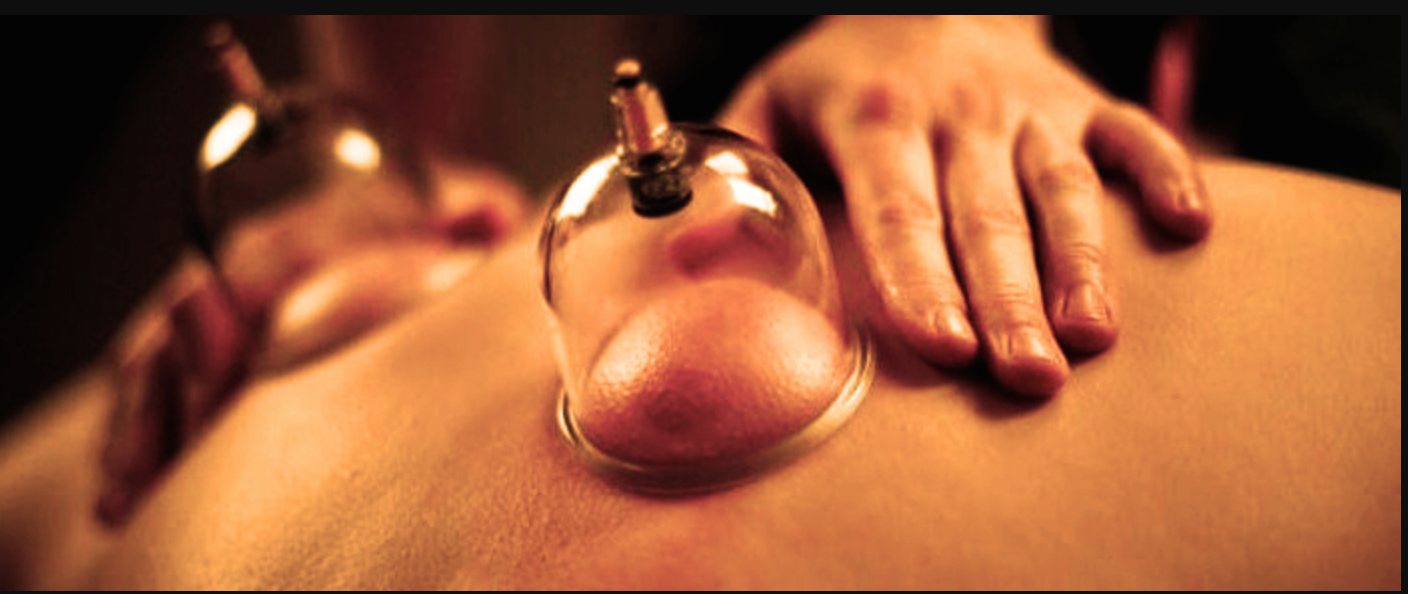 Cupping Therapy - Cups are placed in skin to create suction for pain relief, to reduce inflammation and increase blood flow to stagnant areas on the body.