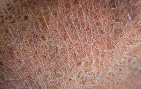 Dry &flaky skin resulting from poor barrier function.