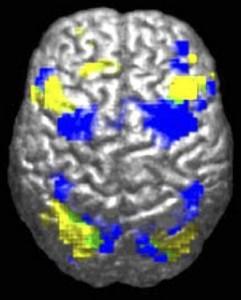 Powell2004Fig1A-241x300.jpg