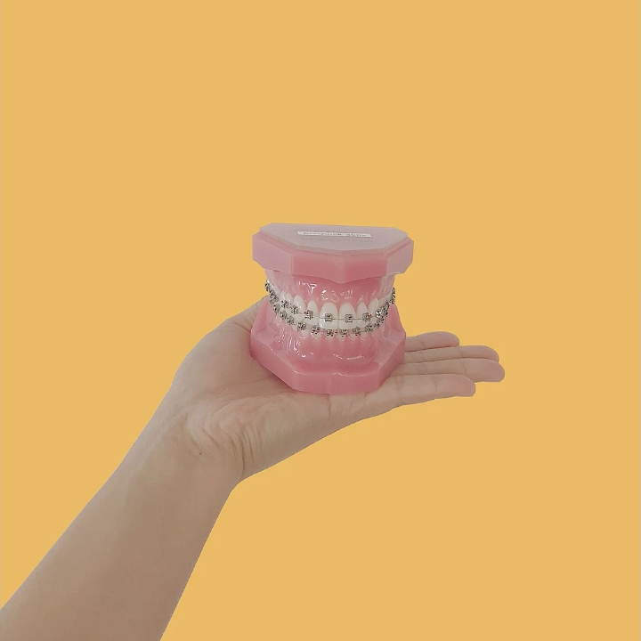 Metal Braces - Traditional braces that you probably are more familiar with are more effective and time-efficient at treating extreme overcrowding cases.