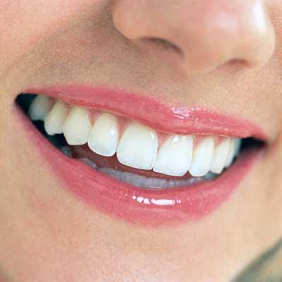 square-smile.jpg