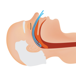 sleep-apnea-300x300.jpg