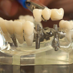 dental-implant-square-300x300.jpg