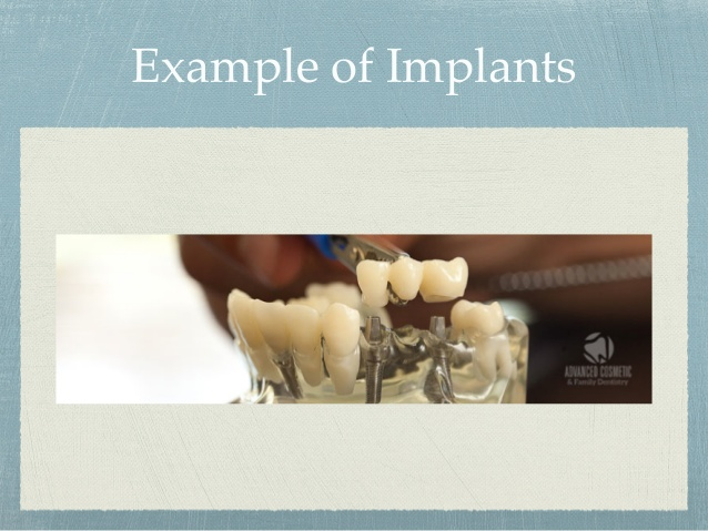 dental-implants-at-advanced-cosmetic-family-dentistry-4-638.jpg