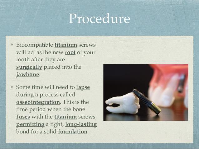 dental-implants-at-advanced-cosmetic-family-dentistry-5-638.jpg