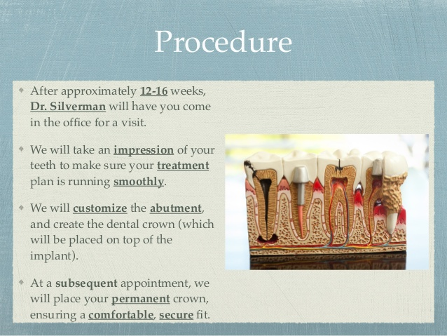 dental-implants-at-advanced-cosmetic-family-dentistry-6-638.jpg
