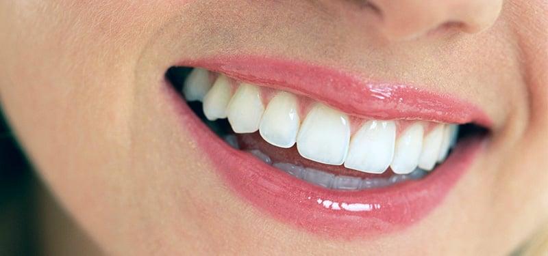 feature-image-straight-teeth.jpg