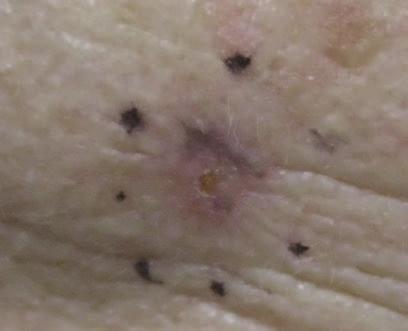 Jawline Skin Cancer - Baseline