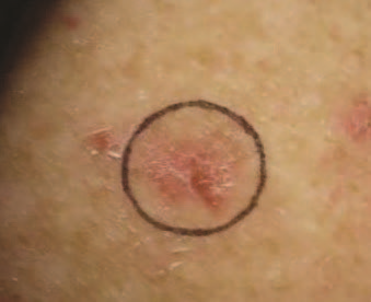 Basal Cell Carcinoma on Shoulder