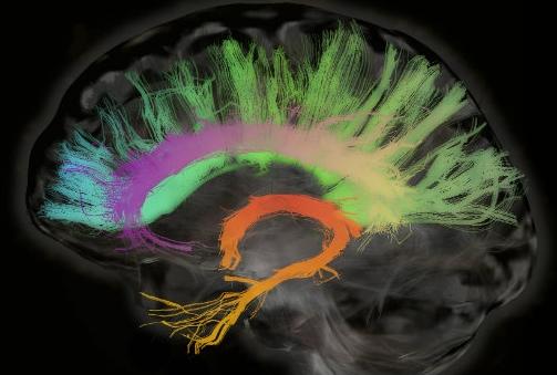 Colorful Brain.jpg