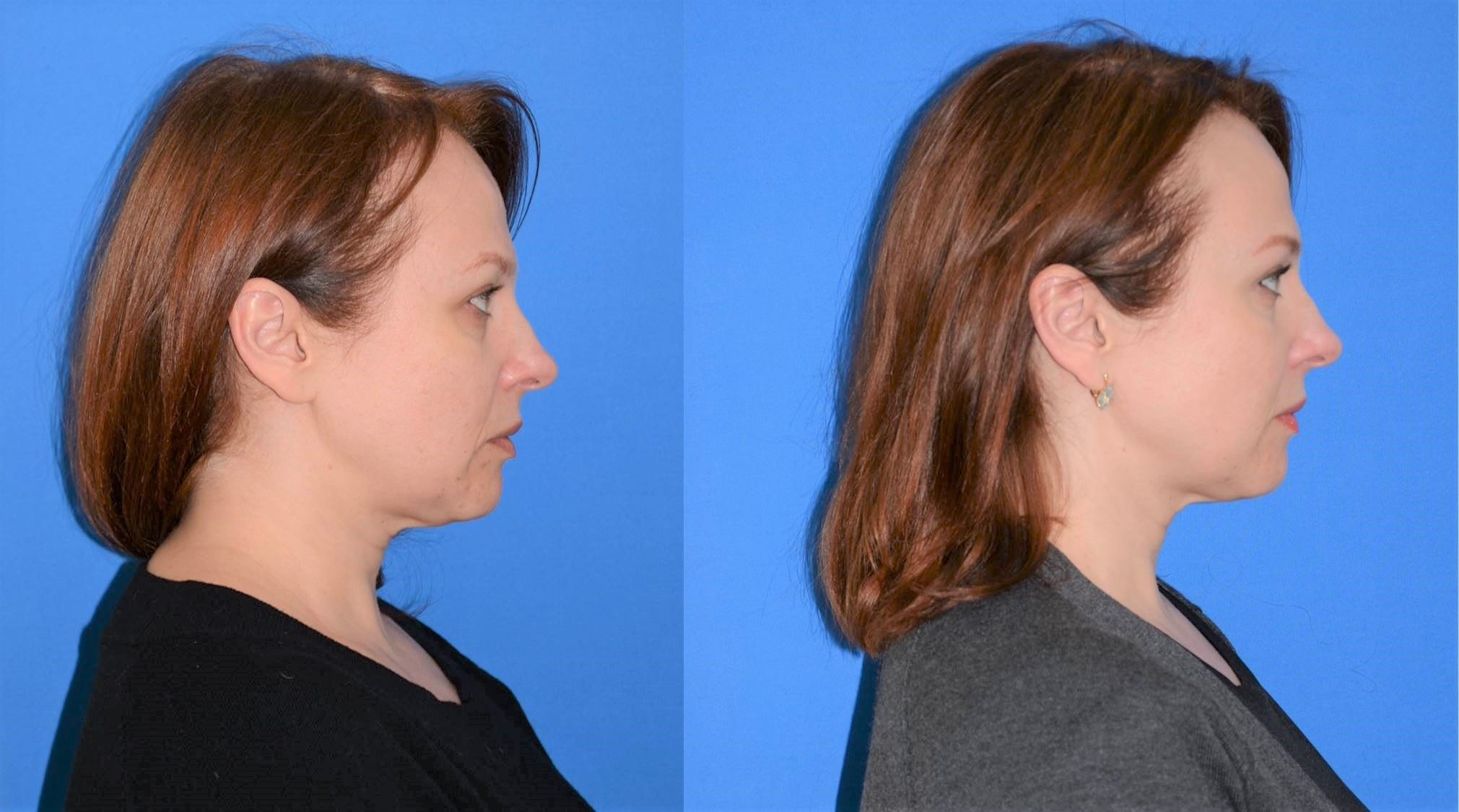 Our patient, 3 months post procedure.  Total results are expected between 6 and 12 months post procedure.  Notice the firmer, more defined profile and jawline.