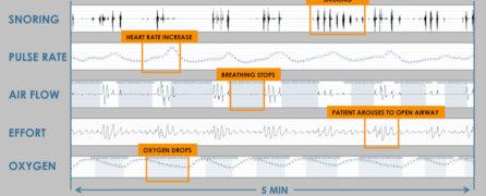 obstructive-sleep-apnea-diagnosis.jpg
