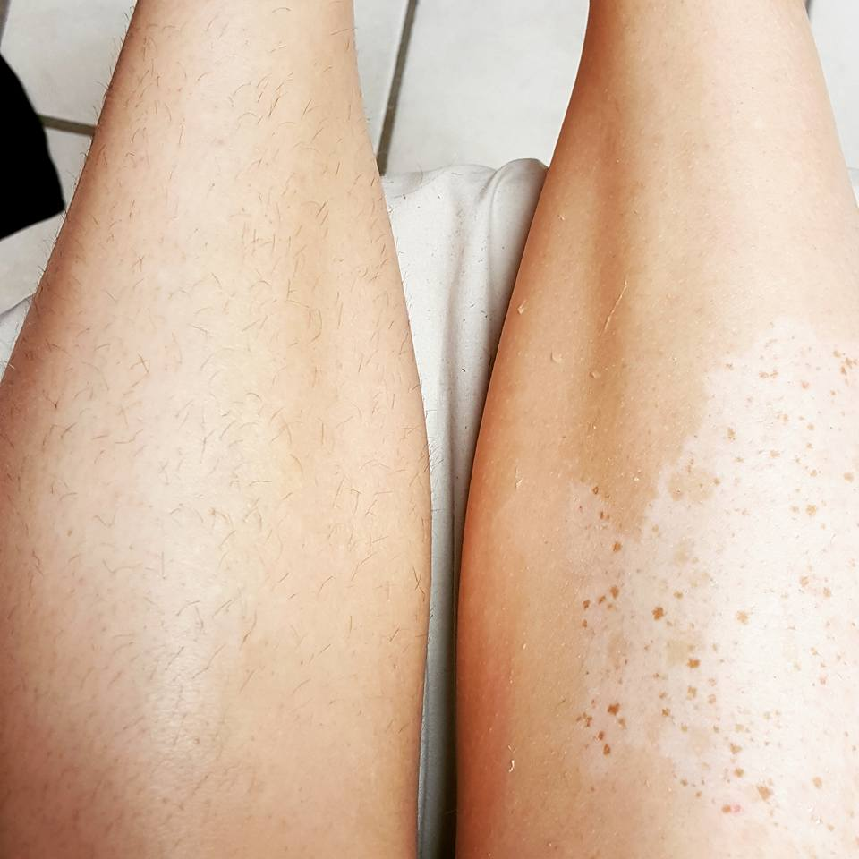 Left: leg ready to sugar! Right: sugaring completed!
