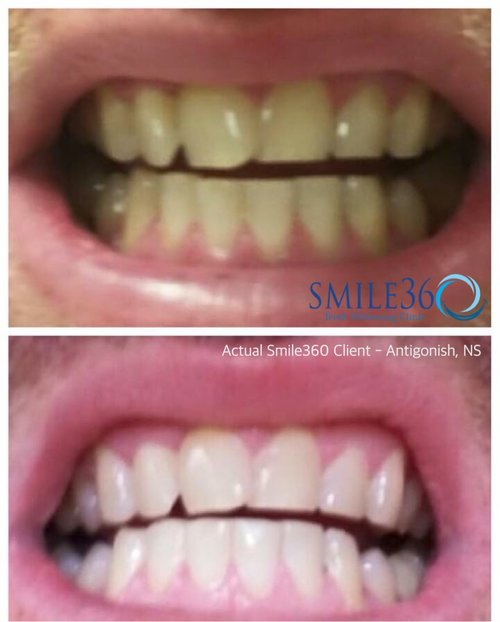 Actual before and after smile360 clients - husband and wife from antigonish nova scotia. Client Submitted photos.